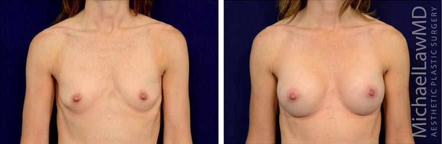 breastaug-100f