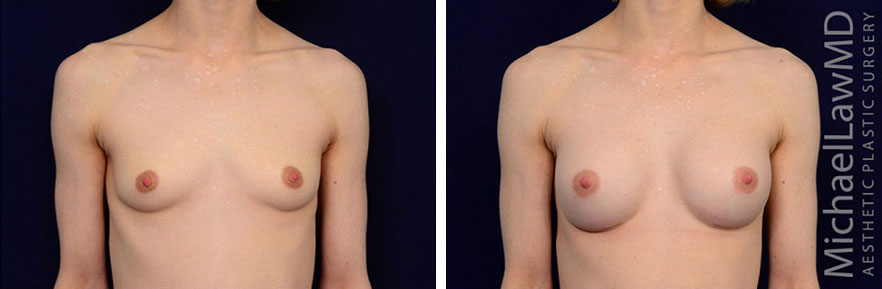 breastaug-101f