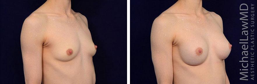 breastaug-101o