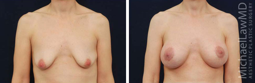 breastaug-102f