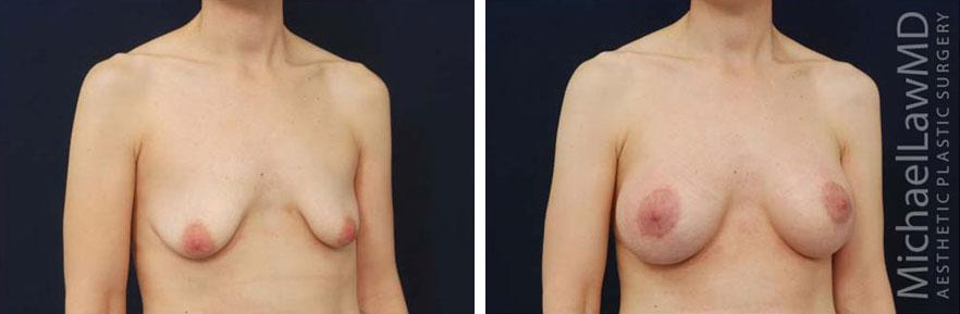 breastaug-102o