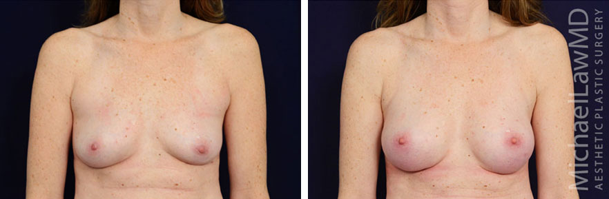 breastaug-104f