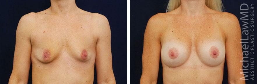 breastaug-110f