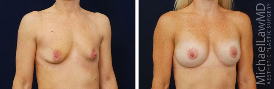 breastaug-110o