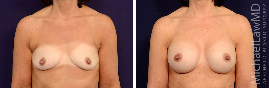 breastaug-113f