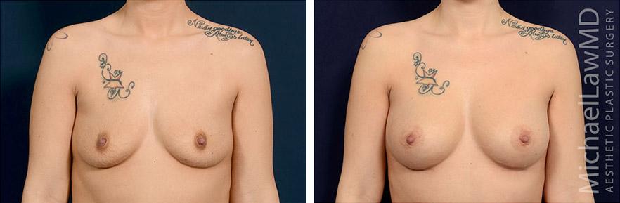 breastaug-114f
