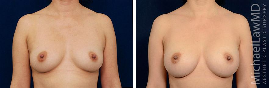 breastaug-118f