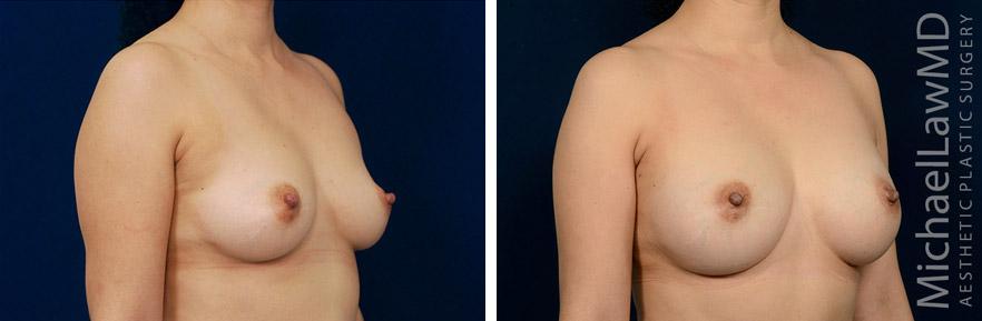 breastaug-118o