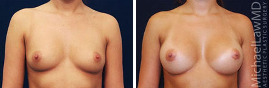 breastaug-11f
