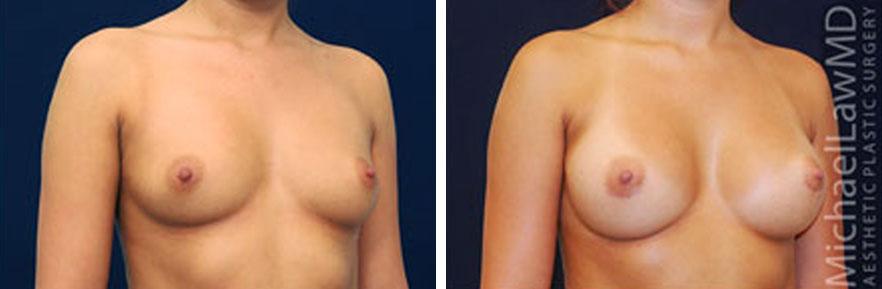 breastaug-11o