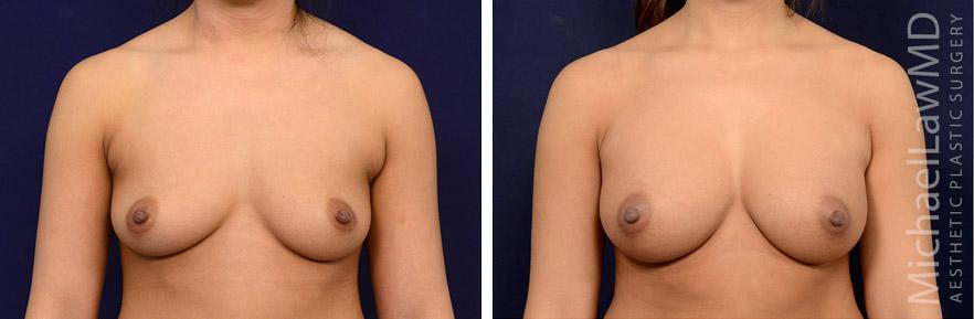 breastaug-120f