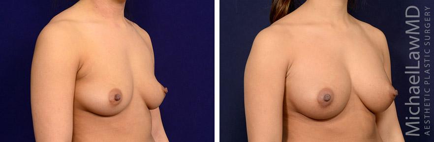 breastaug-120o