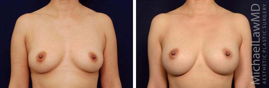 breastaug-122f