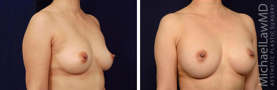 breastaug-122o
