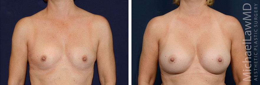 breastaug-127f