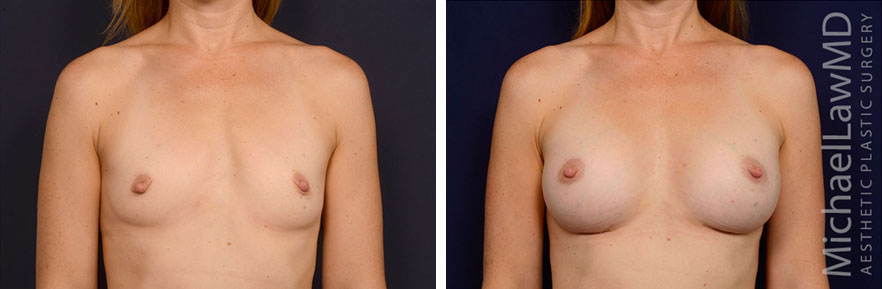 breastaug-128f