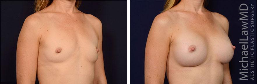 breastaug-128o