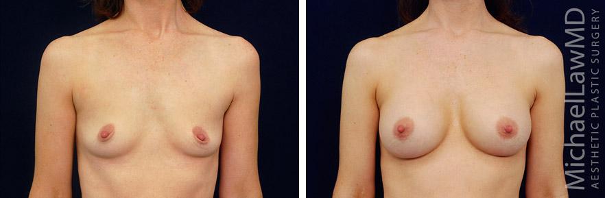 breastaug-132f