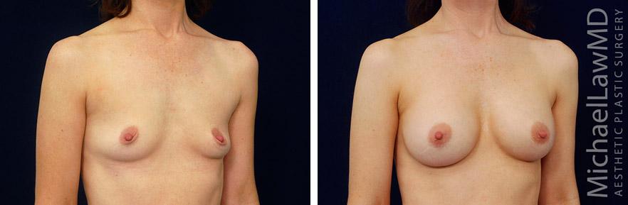 breastaug-132o