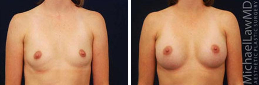 breastaug-15f