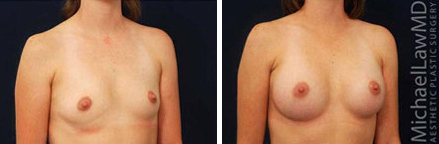 breastaug-15o