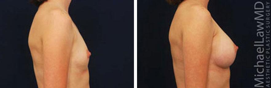breastaug-15s