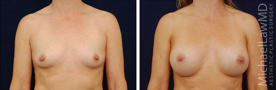 breastaug-16f