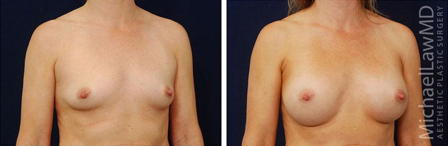 breastaug-16o