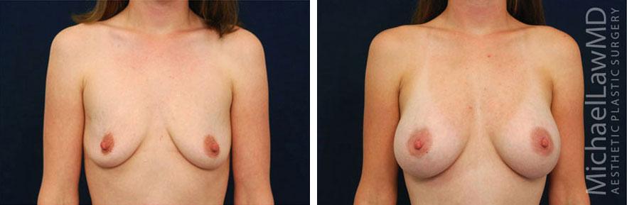 breastaug-19f