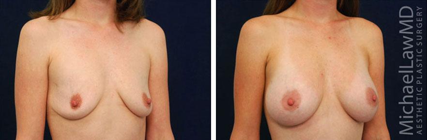 breastaug-19o