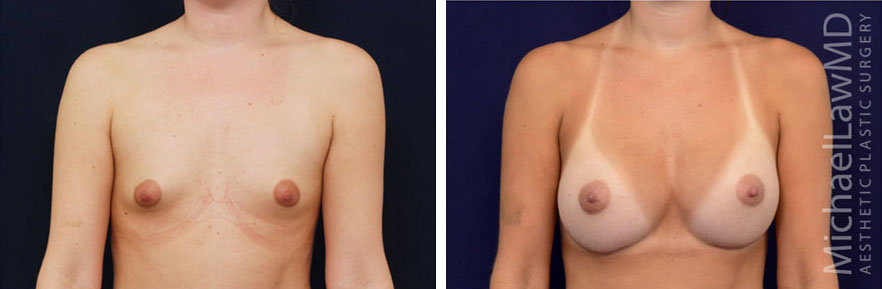 breastaug-1f