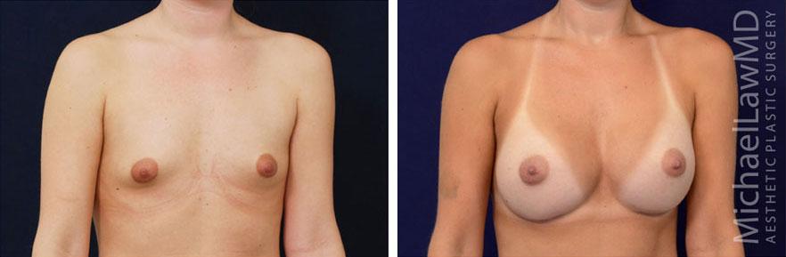 breastaug-1o