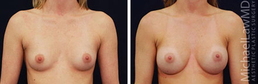 breastaug-2f