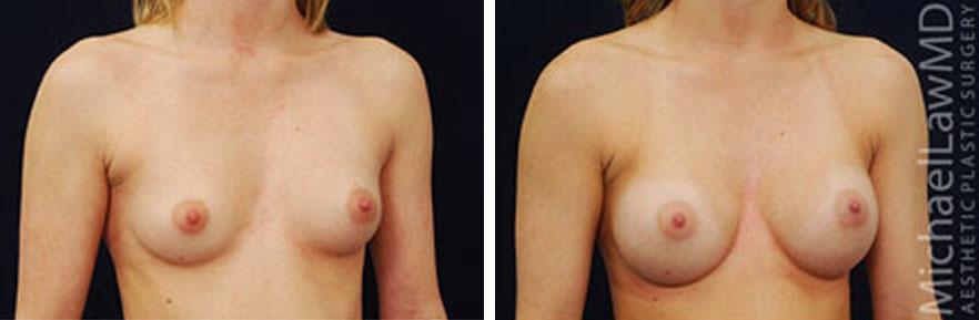 breastaug-2o
