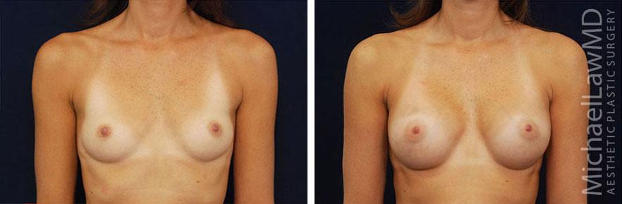 breastaug-31f