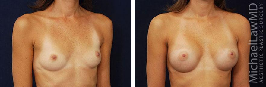 breastaug-31o