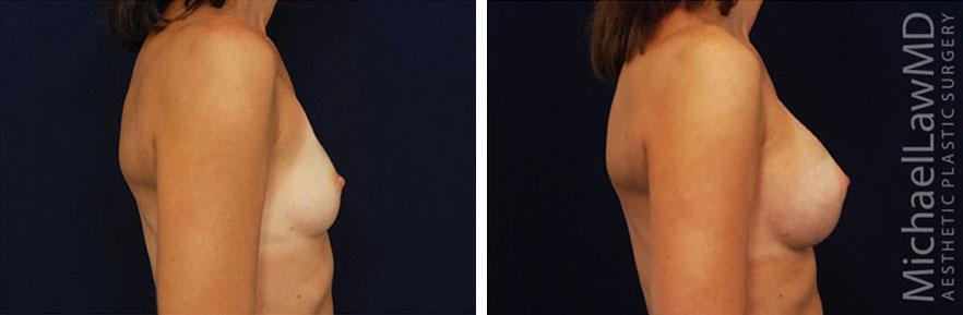 breastaug-31s
