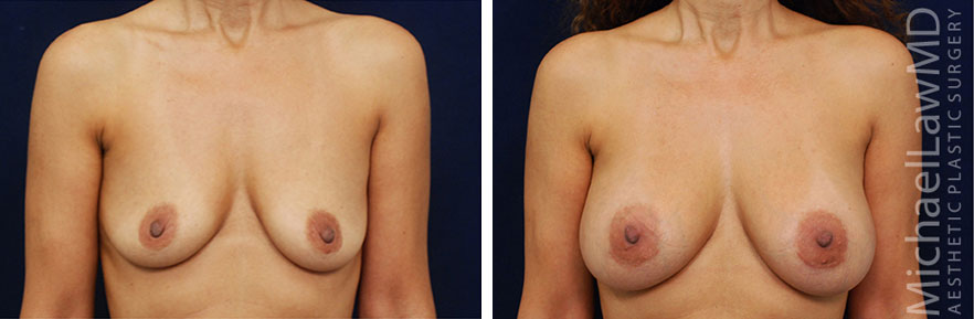 breastaug-32f