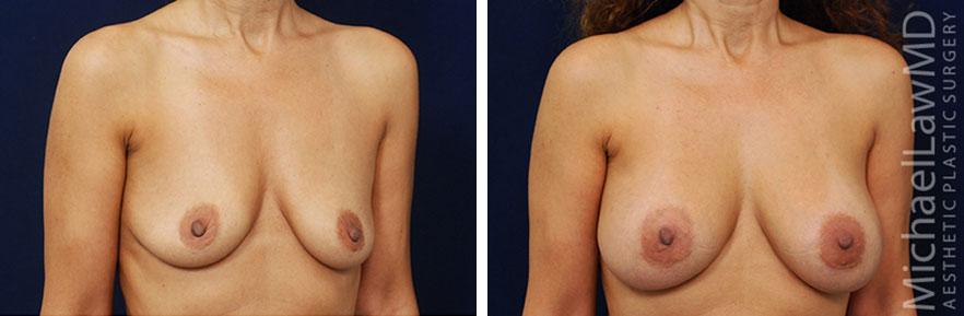 breastaug-32o