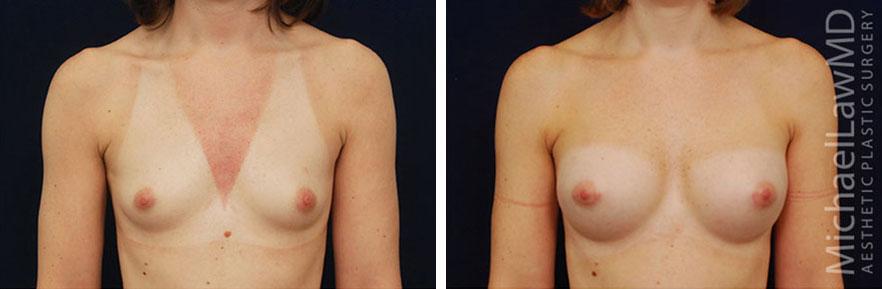 breastaug-34f