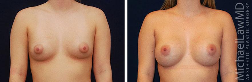 breastaug-35f