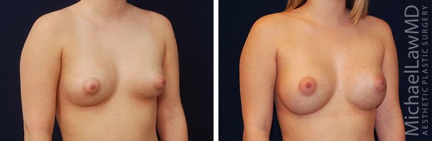 breastaug-35o