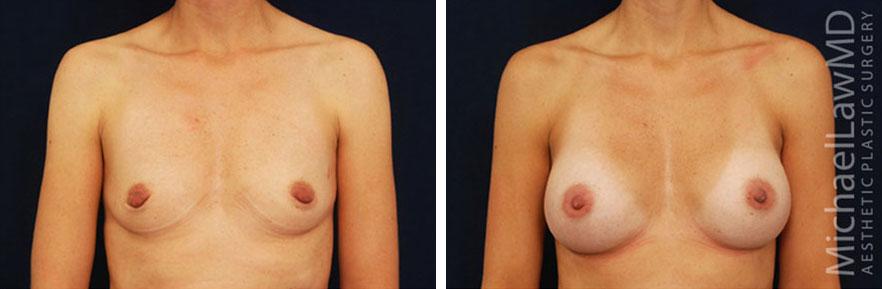 breastaug-39f