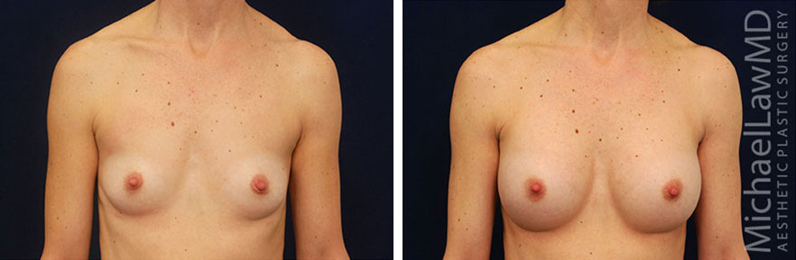 breastaug-40f