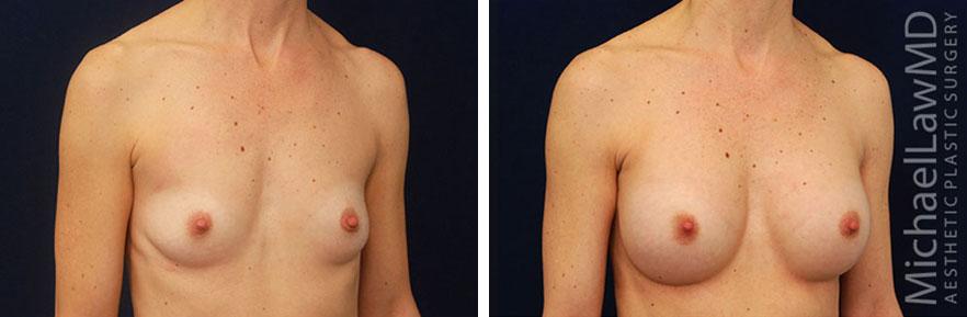 breastaug-40o