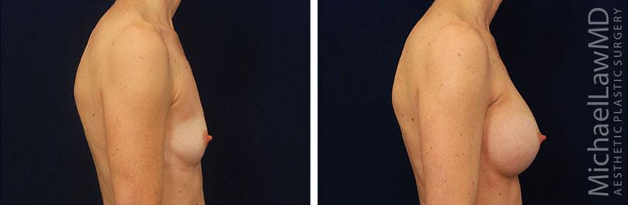 breastaug-40s