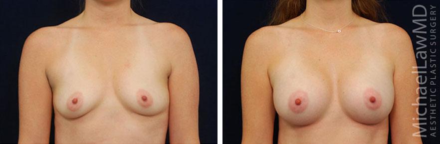 breastaug-44f