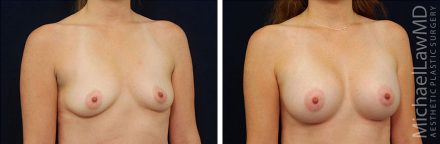 breastaug-44o