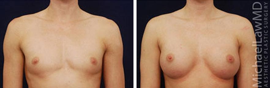 breastaug-46f
