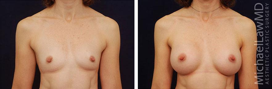 breastaug-49f